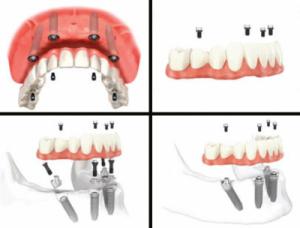 All-on-4 Procedure Illustration