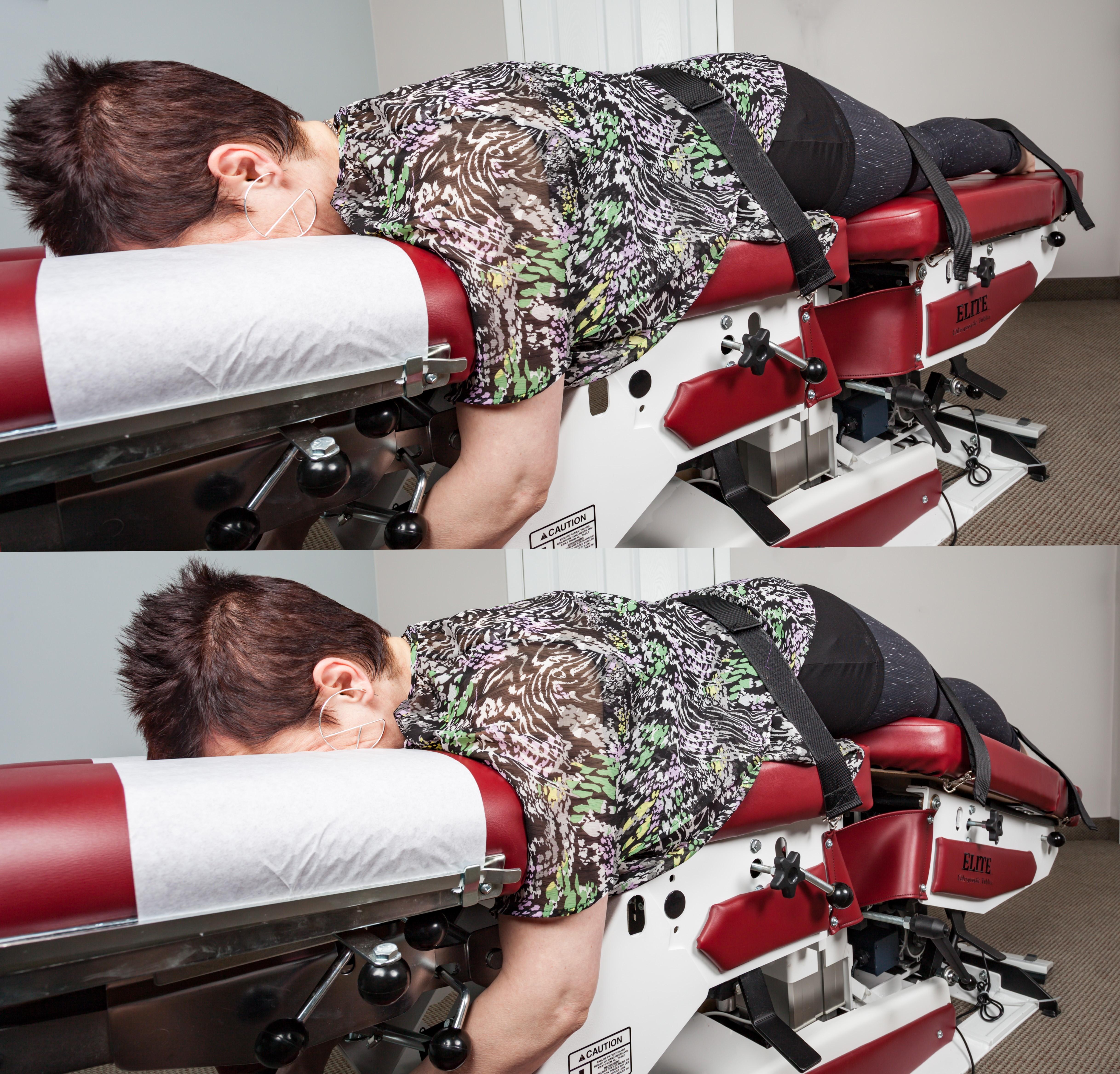 Spinal Decompression Treatment Saskatoon Movement