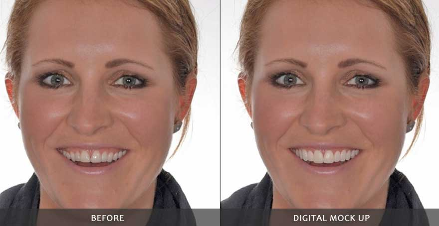 DSD Smile Makeover