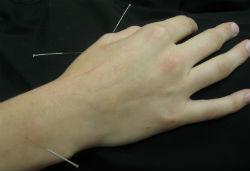 Marion Acupuncture