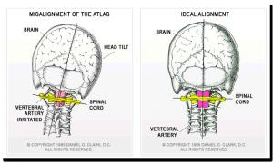 Head Neck Alignment