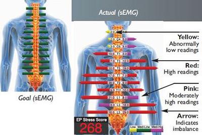 example sEMG