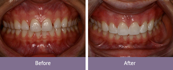 Cosmetic Dentistry Before and After Bentleigh East