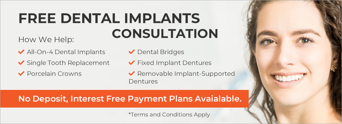 Dental Implants Consultation