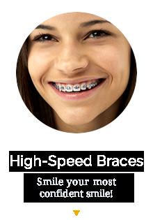 High-Speed Braces