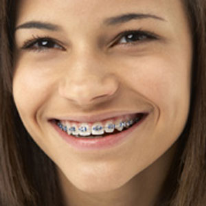 Orthodontics Toorak
