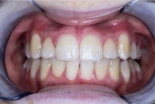 braces-1-after