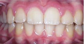 braces-2-after