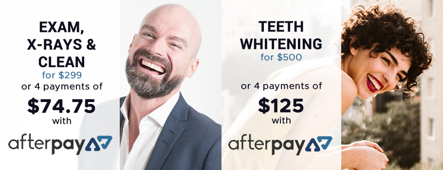 Four payments with AfterPay