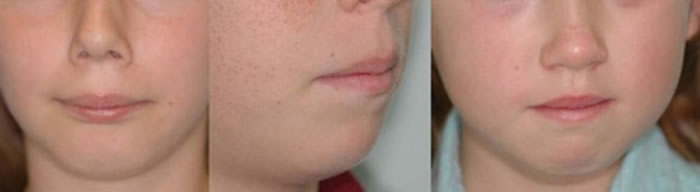 muscle used chin to bring lips together