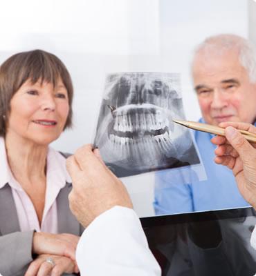 All-on-4 Dental Implants Mandurah Bunbury, Busselton
