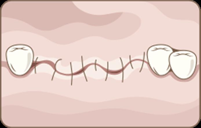 Conventional Dental Implant