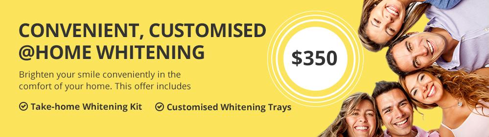 home-whitening-v2a
