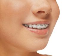 Orthodontics Greensboro