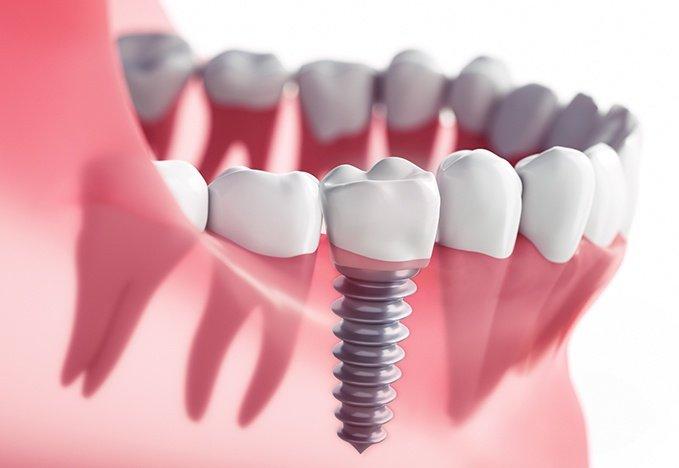 Dental-Implant-Perth