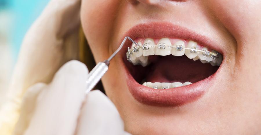 Orthodontics-Perth