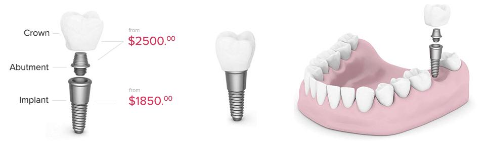dental-implants-cost