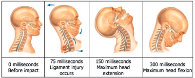 Even a minor fender bender can produce a whiplash injury.