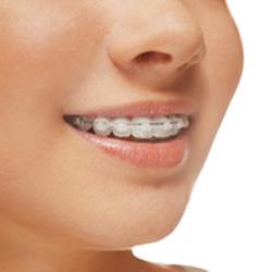 Traditional Braces at Narre Warren Dental Care