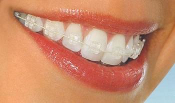 Smilefast Orthodontics