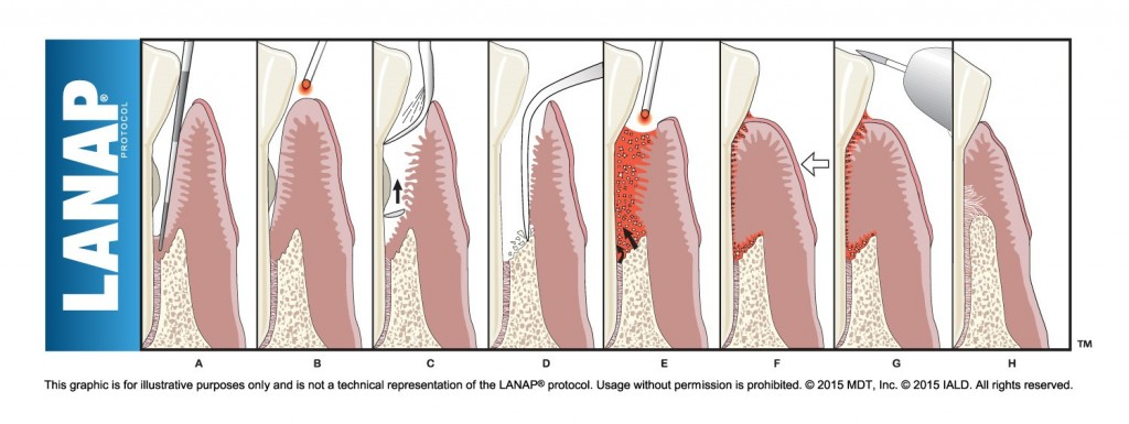 lanap-procedure
