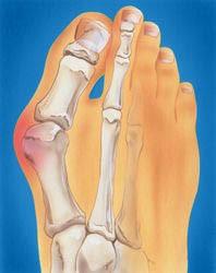 Illustration of bunion