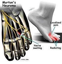 Illustration of Morton Neuroma