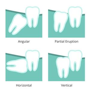 Illustration of wisdom teeth