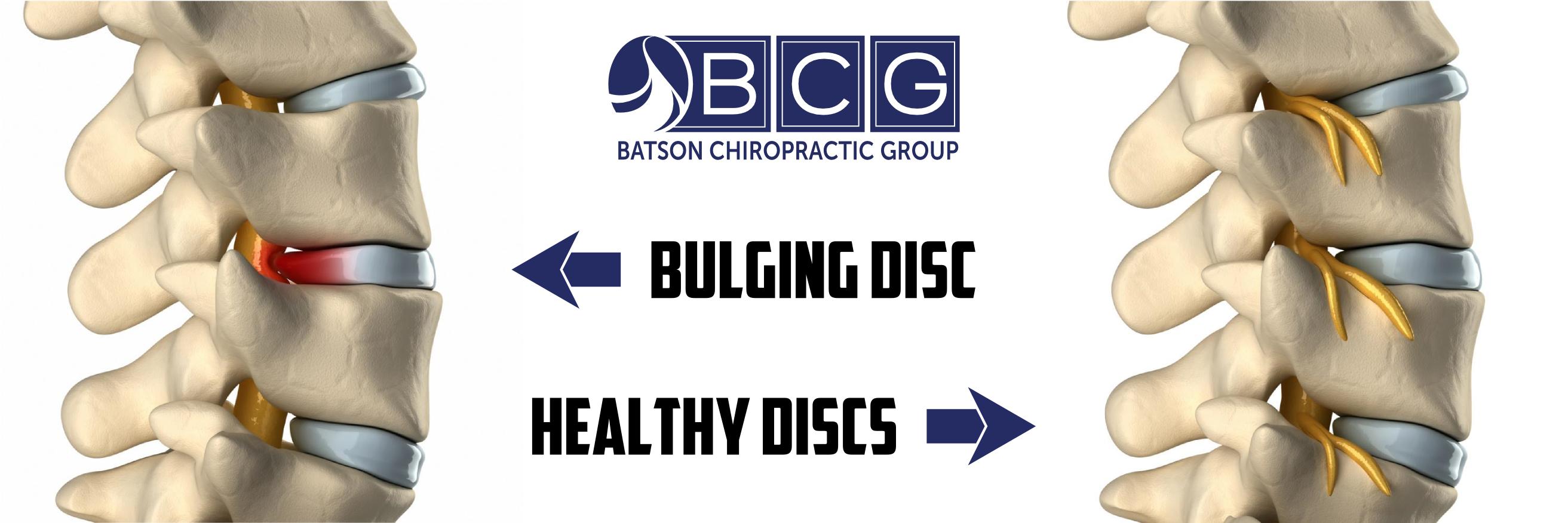 Bulging Herniated Disc
