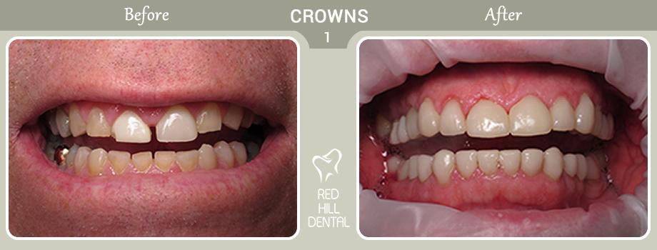 Crowns case 1