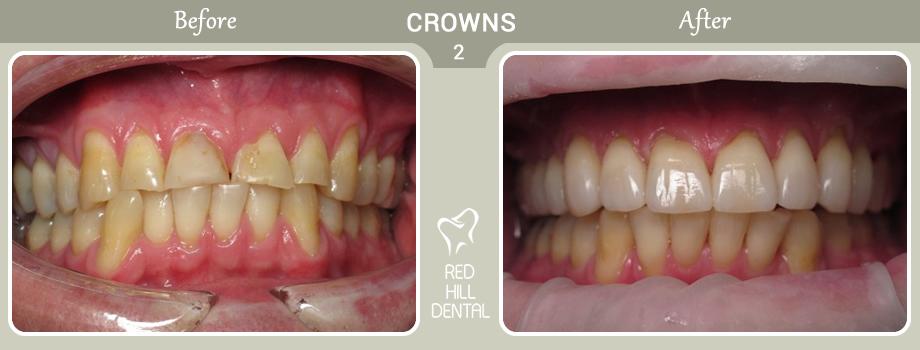 Crowns case 2