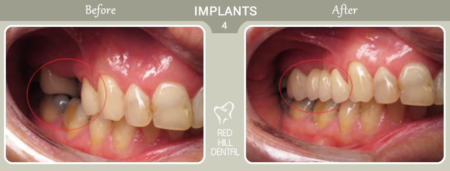 implants case 4