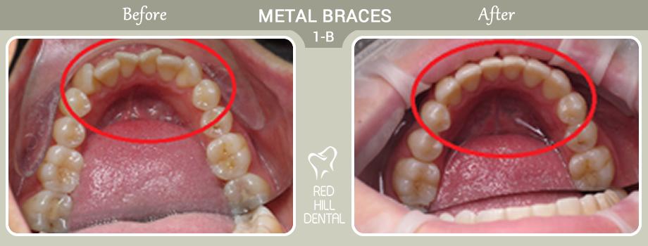 Metal Braces case 1a