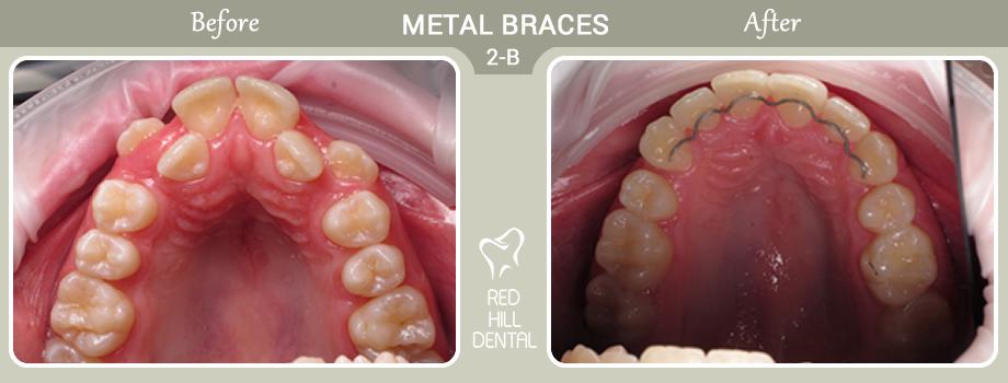 metal braces case 2b