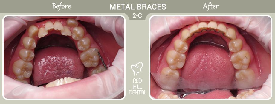 metal braces case 2c