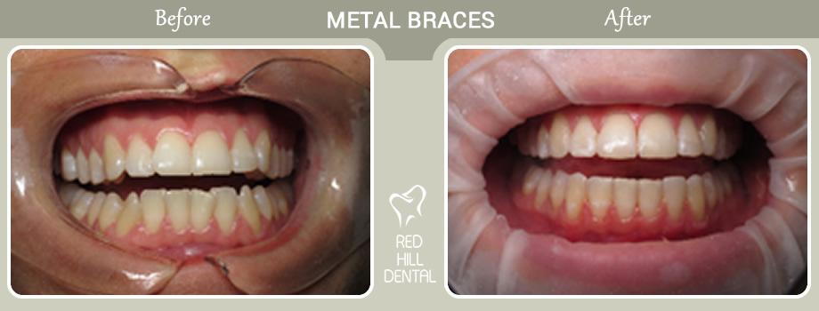 Metal Braces case Rebecca 1