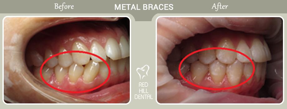 Metal Braces case Rebecca 3