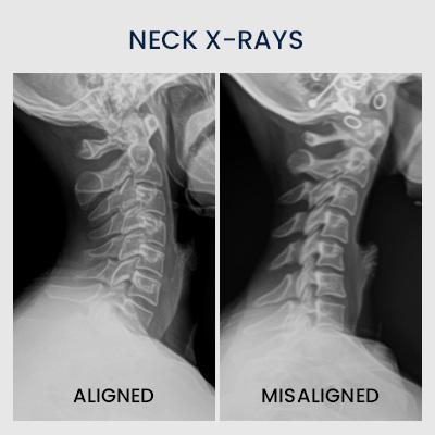 neck xrays