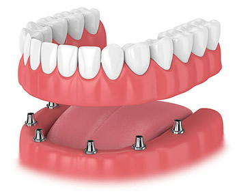 Implant denture Wilton