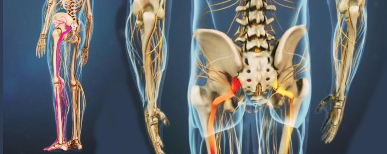 Sciatic Pain Treatment