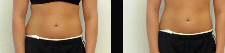 before after waist