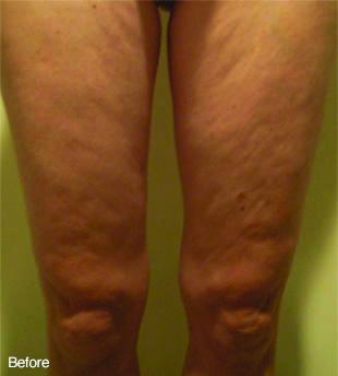 legs-before