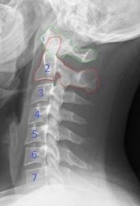 43f68cd9218267a8bb760c5789af6171--neck-arthritis-types-of-arthritis
