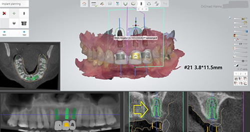multiple-implants-planning-2