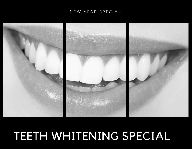 teeth-whitening--special