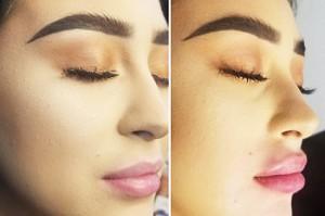 Lips, tear trough on 2nd Belotero