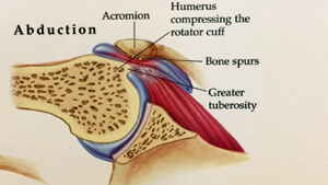Illustration of shoulder impingement