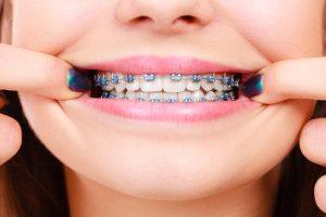Girl wearing traditional metal braces