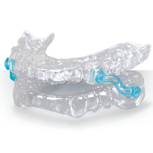 Mandibular Advancement Splint device