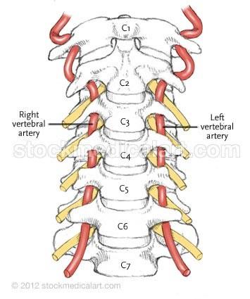 Illustration: Vertebral artery